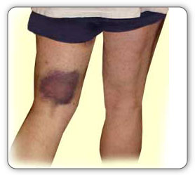 Bruised hamstring muscles