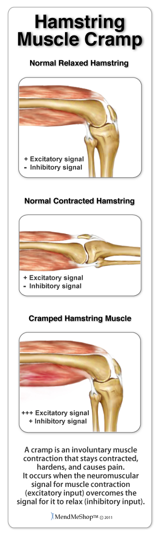 Hamstring muscle cramp occurs when the muscles in the upper thigh contract involuntarily.