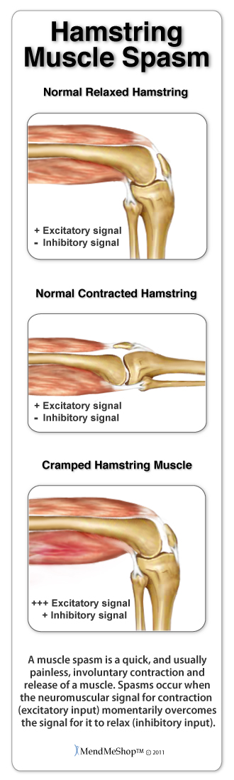 Hamstring muscle spasm occurs when the muscles in the upper thigh contract involuntarily.