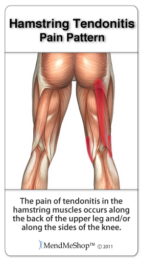 Hamstring Tendinosis pain patterns