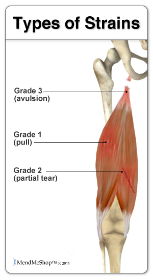 Hamstring complete/partial and tears, strains