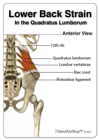 Lower back strain.