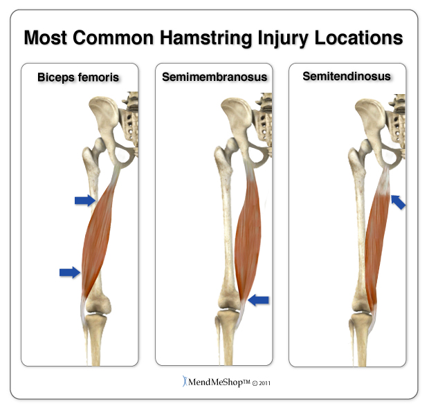 the hamstring is easily injuried when the muscles are weak