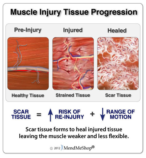 Scar tissue builds on the muscle as the tears heal. The build up causes pain and inflexibility making your muscle more prone to further injury.