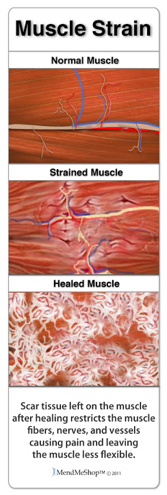 Scar tissue will grow in to protect your injured muscle, but the scar tissue will attach to everything resulting in a hard fusing together of tendon tissue - reducing mobility.