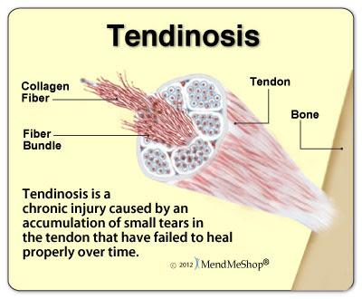 tendinosis-chronic